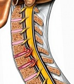 Herniated Disc Beverly Hills